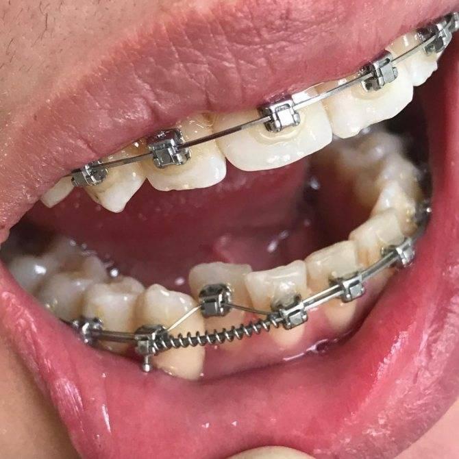 Сколько носят брекеты на зубах для исправления прикуса?