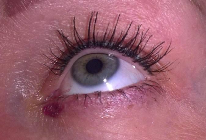 красное пятно на веке глаза