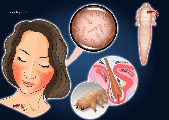 Питание, облегчающее состояние при демодекозе лица