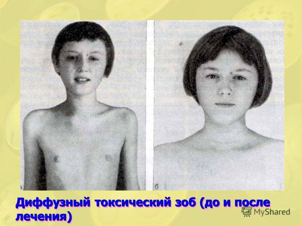 щитовидная железа у детей 7 лет норма