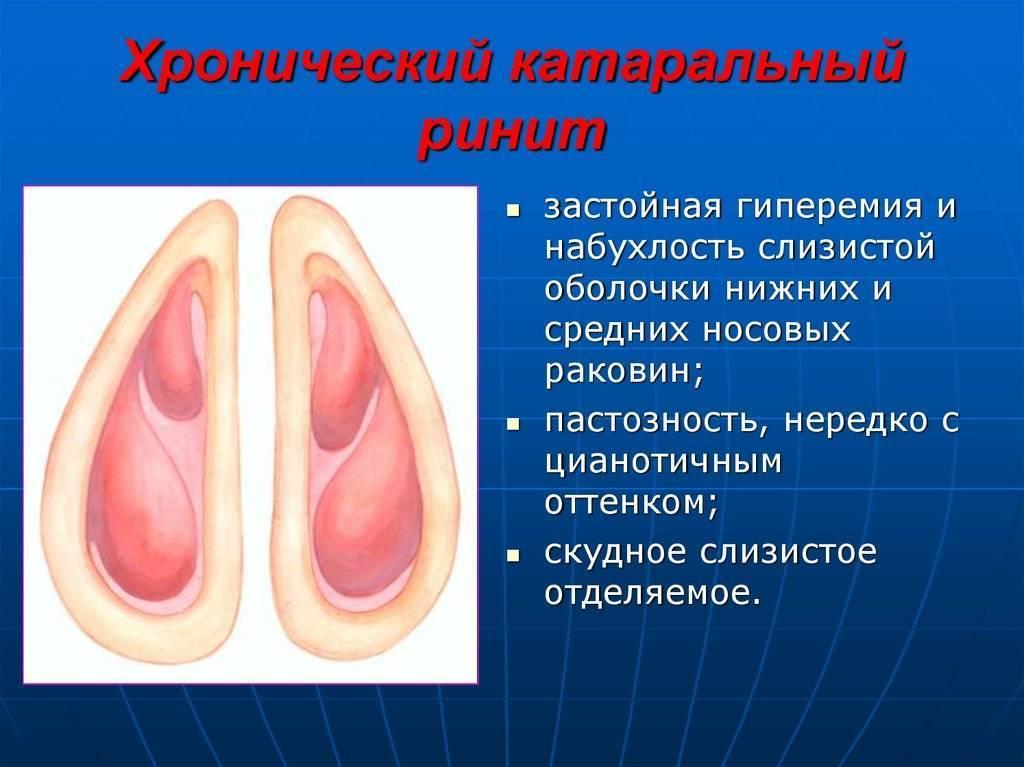 катаральный ринит что это такое