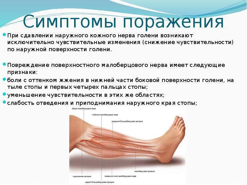 Нейропатия малоберцового нерва лечение