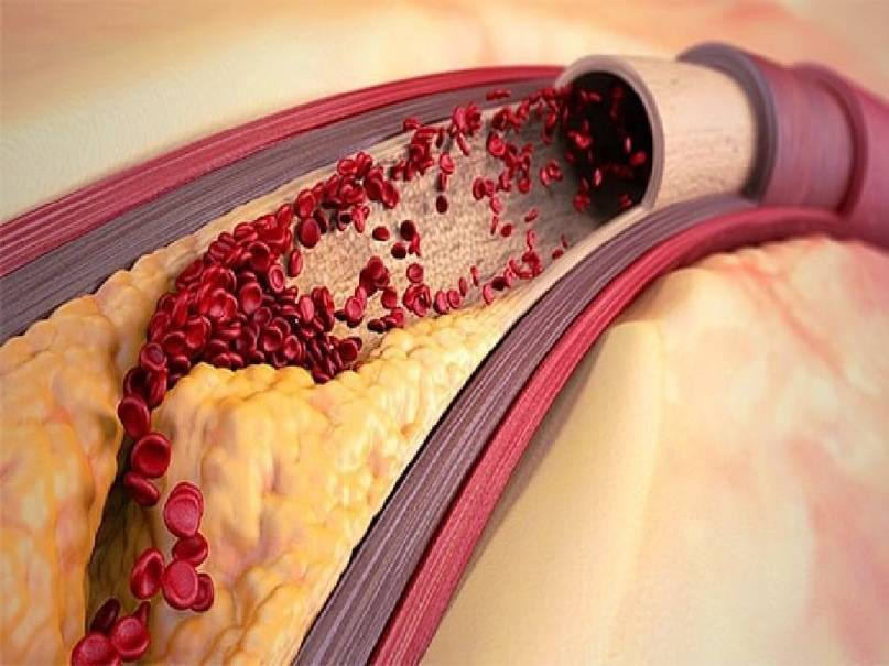 Какой врач лечит атеросклероз сосудов