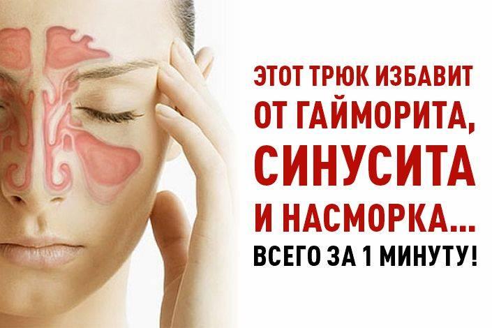 Гайморит: симптомы, причины, лечение