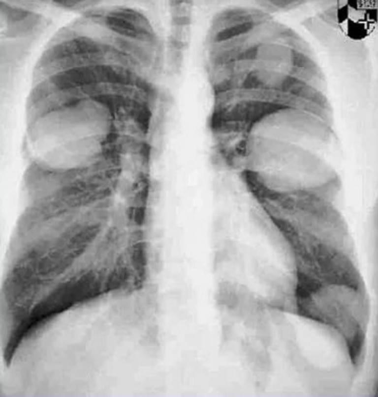 Эхинококковая киста: причины возникновения, симптомы, диагностика и лечение. эхинококкоз печени