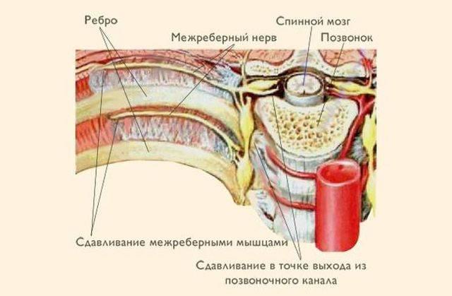 Мази и уколы от межреберной невралгии