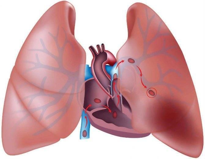Что такое атеросклероз и чем он опасен?