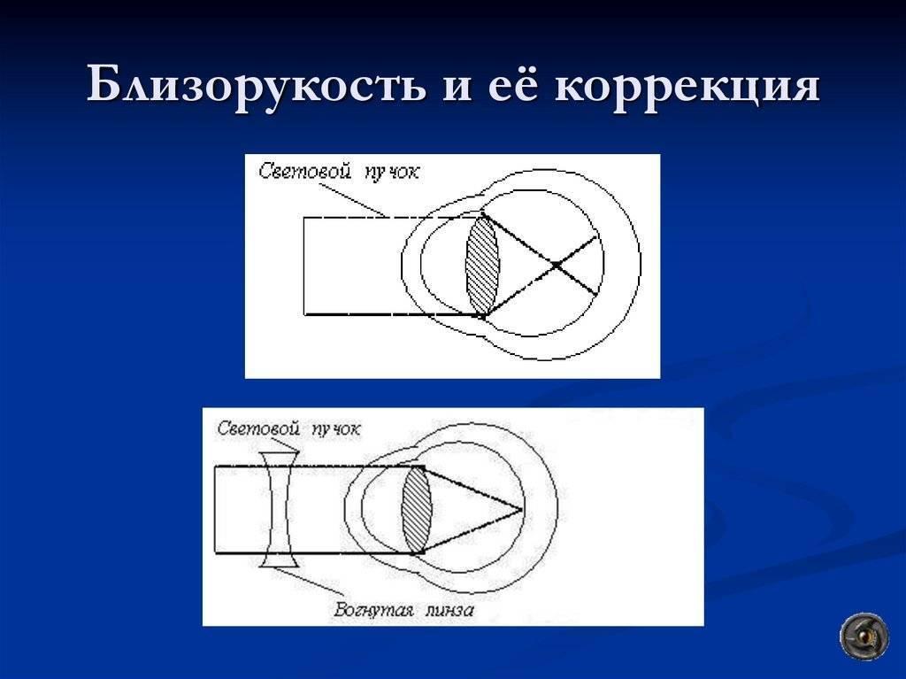 Лазерная коррекция близорукости – ответы на главные вопросы