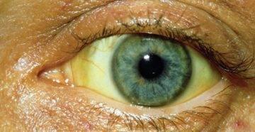 у ребенка желтоватые белки глаз