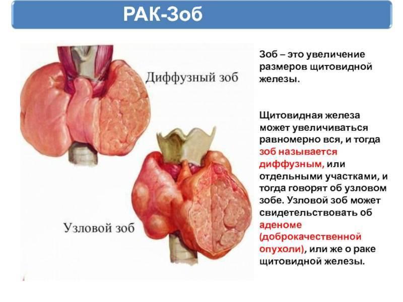 Узловой зоб щитовидной железы: симптомы и лечение