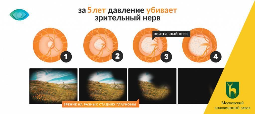 Первичная глаукома