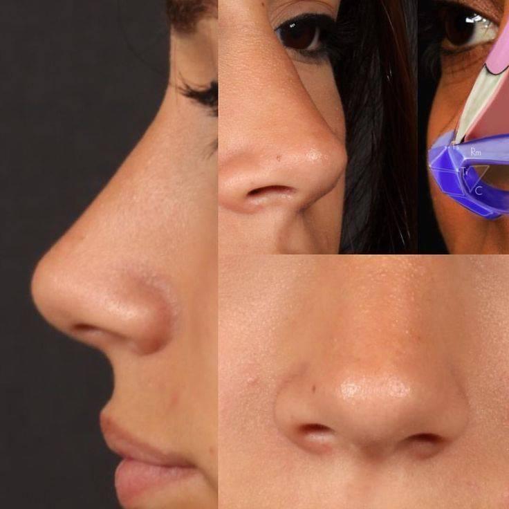 Эффективные упражнения для носа - уменьшение и коррекция носа гимнастикой