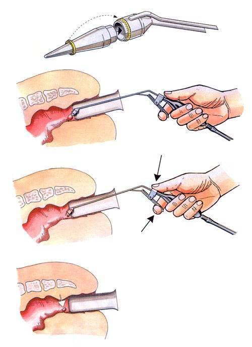 Геморрой после операции: осложнение, восстановление, что делать