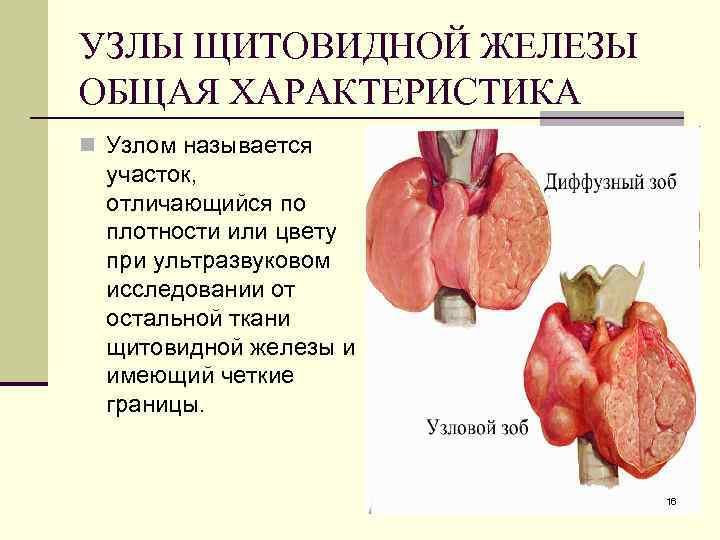 Узел на щитовидке а гормоны в норме: гормоны, лекарства, лечение, норме, первые признаки, стадии, узел, щитовидке