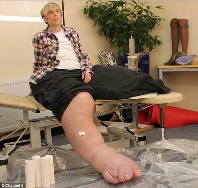 Как лечить слоновость ног?