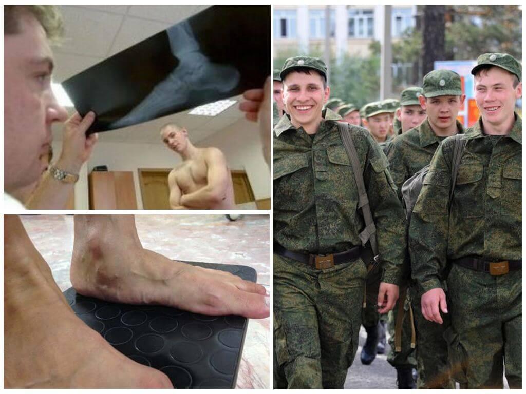Берут ли в армию с псориазом: нормы законодательства