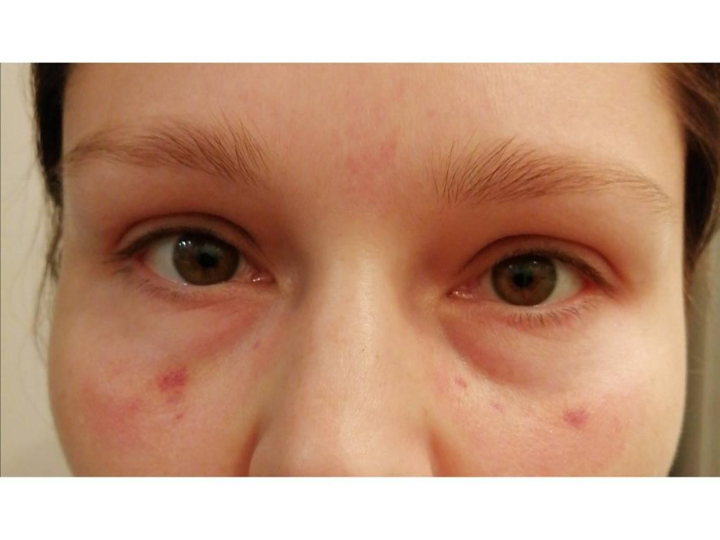 покраснение кожи под глазами причины