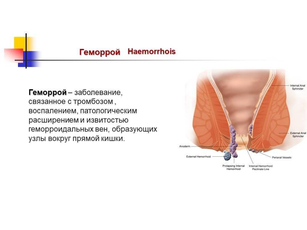 Что делать если воспалился геморроидальный узел?