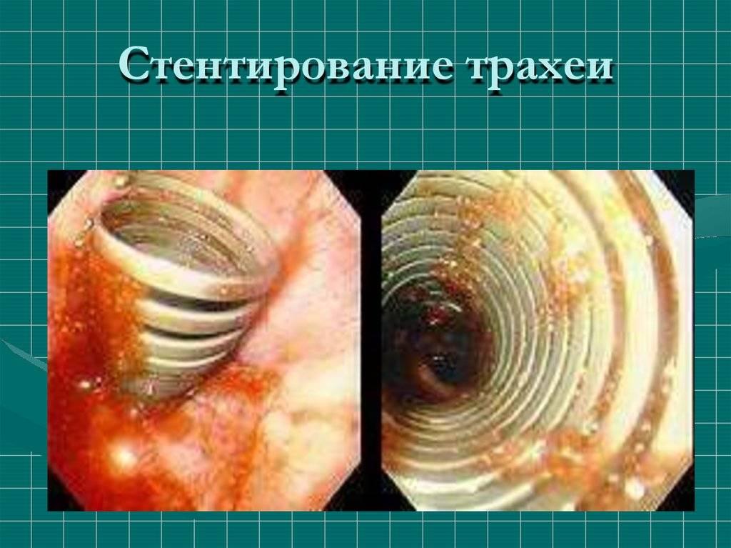 Симптомы и стадии рака трахеи