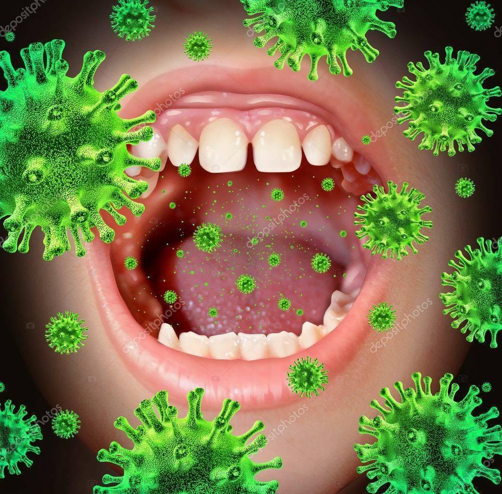 Вирусная ангина – как распознать и лечить острый тонзиллит?