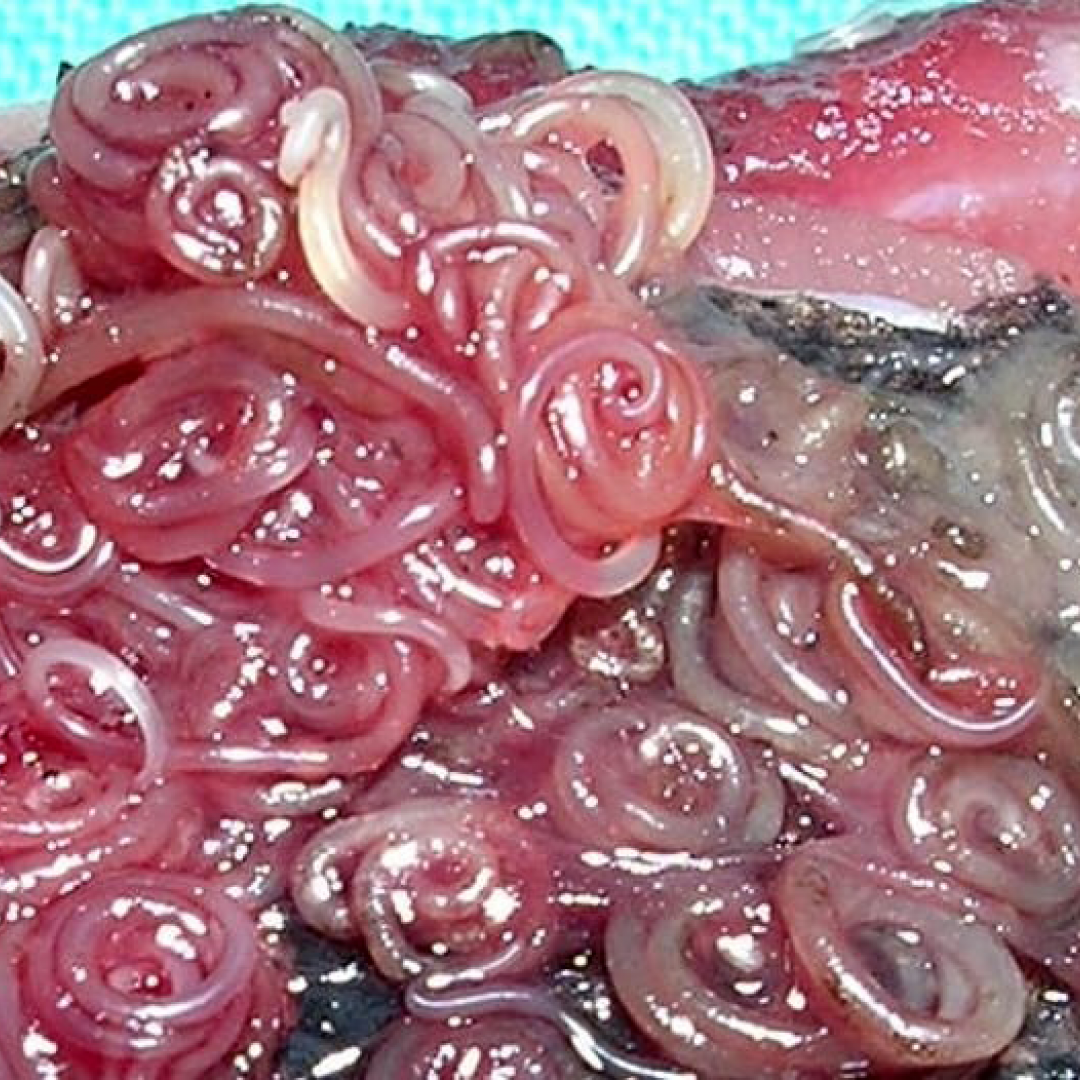 Анизакидоз: причины, симптомы и лечение | все о паразитах