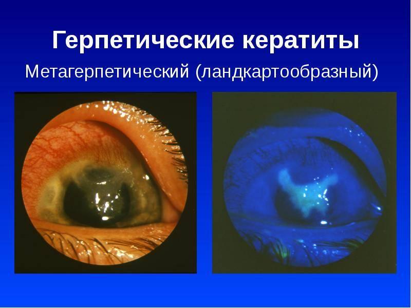 Герпетические поражения глаз (герпетический кератит) - симптомы болезни, профилактика и лечение герпетических поражений глаз (герпетического кератита), причины заболевания и его диагностика на eurolab