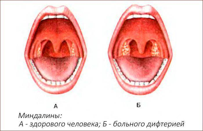 болит горло с левой стороны при глотании