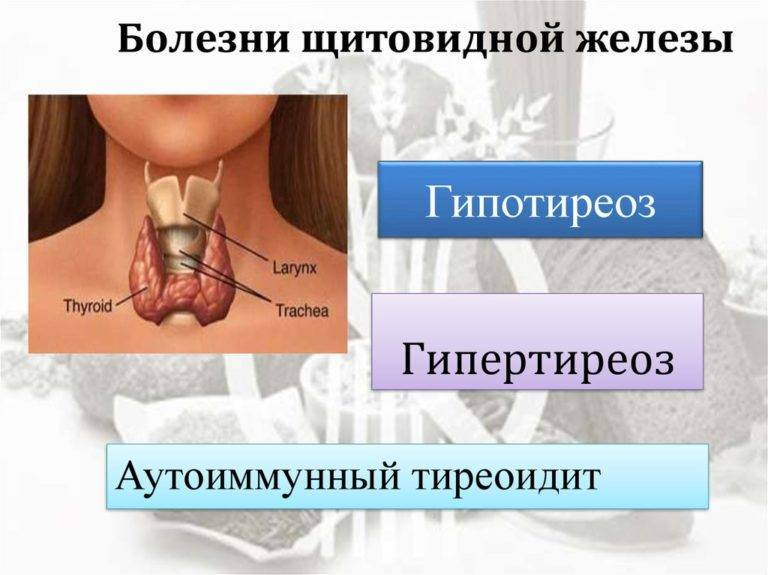 причины заболевания щитовидной железы у мужчин