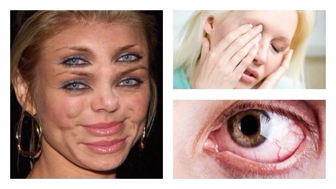 Двоится в глазах: причины двоения изображения, почему и при каком заболевании, диплопия после травмы у ребенка, без головокружения