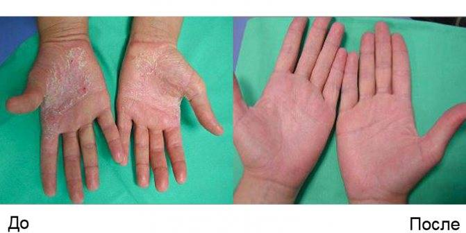 Псориаз: симптомы и признаки на руках, ногах, ногтях и др.