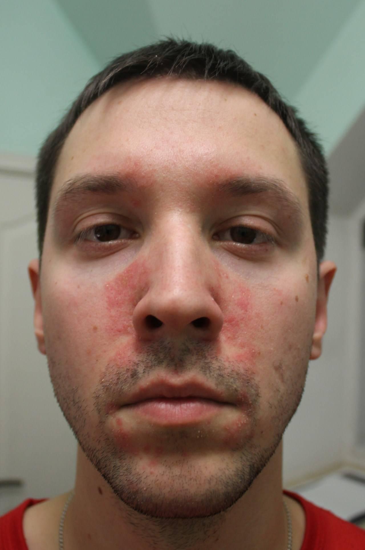 Инфекционный (вирусный) дерматит: фото, причины, симптомы и лечение