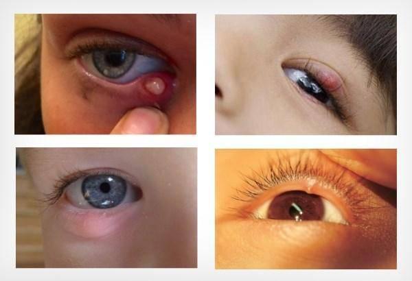 О чем свидетельствуют ярко желтые выделения из носа ребенка и как их лечить