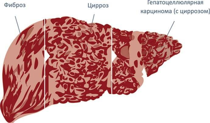 фиброз печени лечение препараты