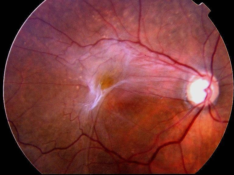 Эпиретинальный фиброз глаза: что это такое и как вылечить?