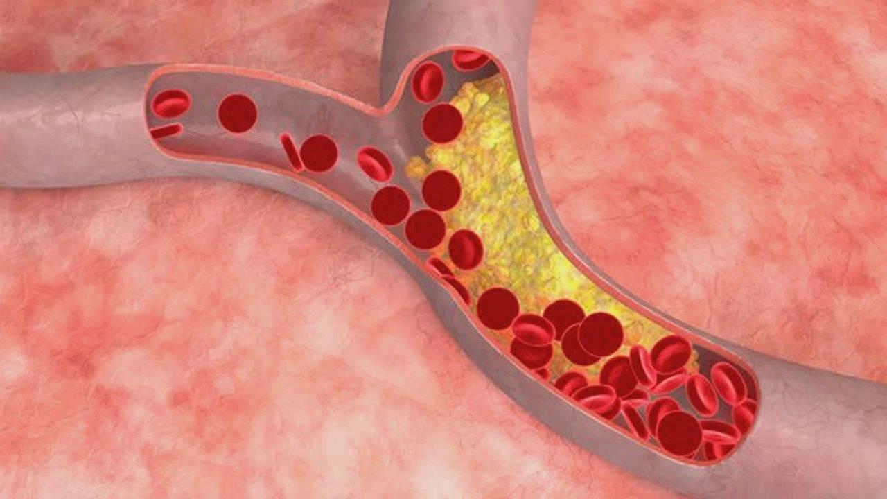 Лечение и причины бляшек в сосудах нижних конечностей