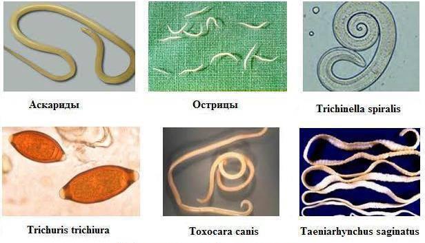 Черви-гельминты. какие глисты живут в человеке. виды паразитов