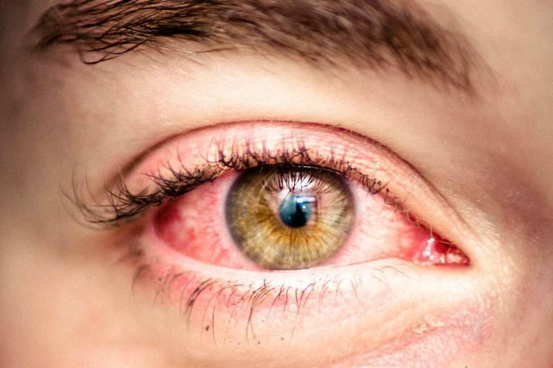 чем лечить аллергический конъюнктивит у взрослого
