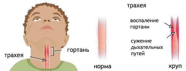 круп симптомы и лечение у детей