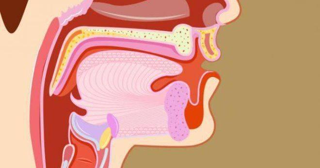Тонзиллит. причины, симптомы, признаки, диагностика и лечение патологии