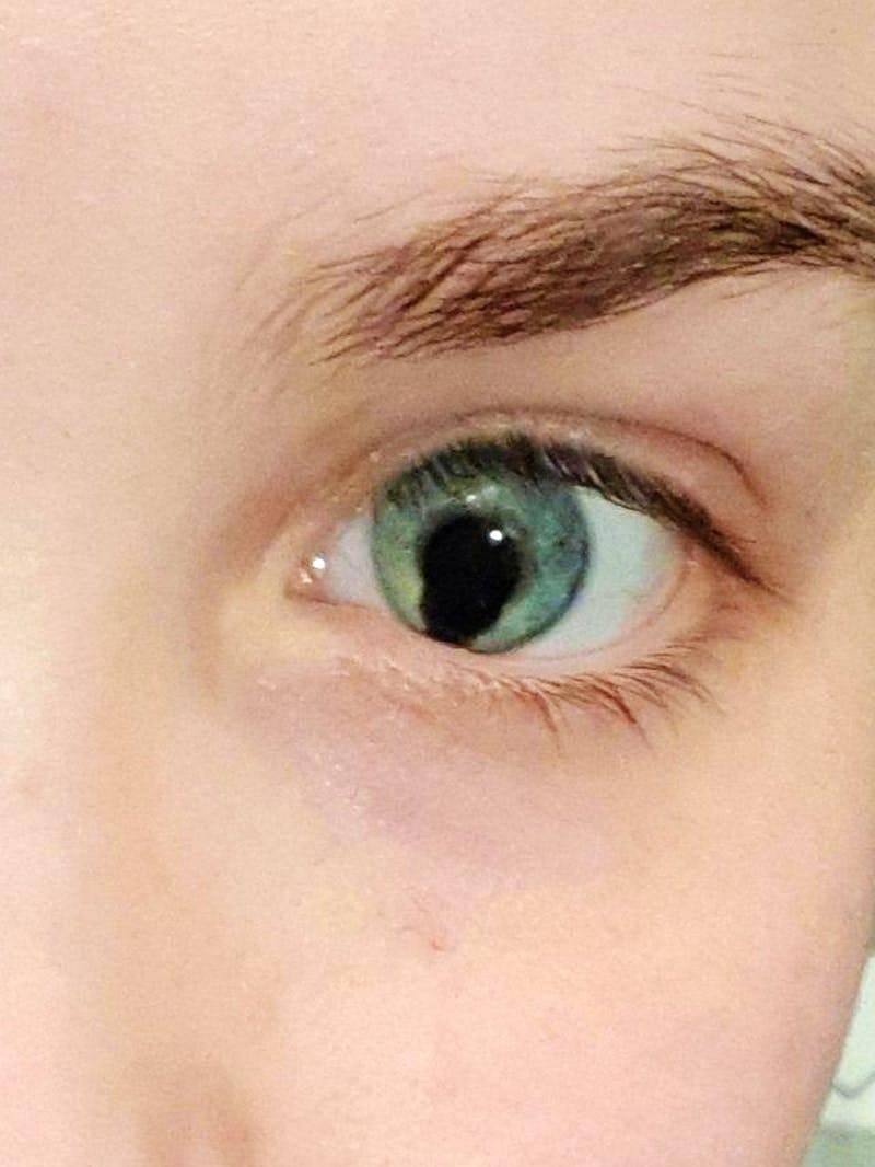 Формы и причины появления колобомы радужки глаза