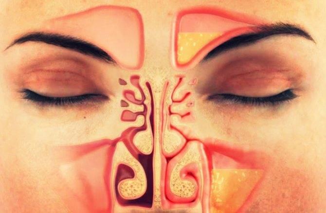 Может ли быть гайморит без насморка, температуры и заложенности носа