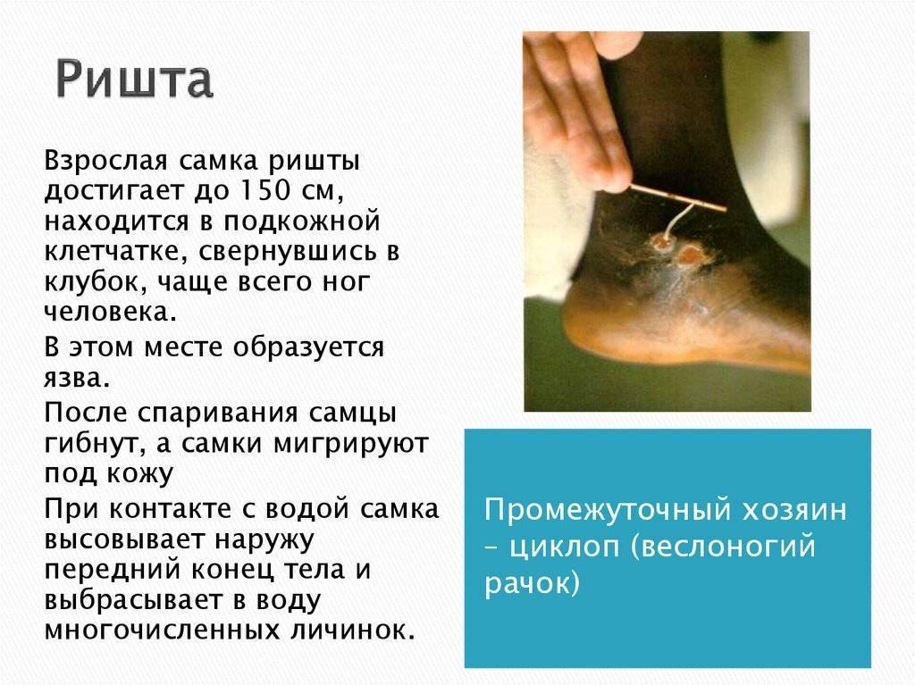 паразит ришта