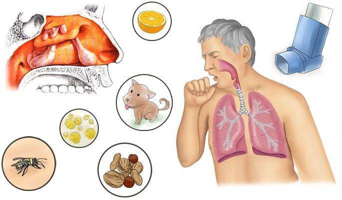 Риносинусит у детей и взрослых: причины, признаки, диагностика, как лечить