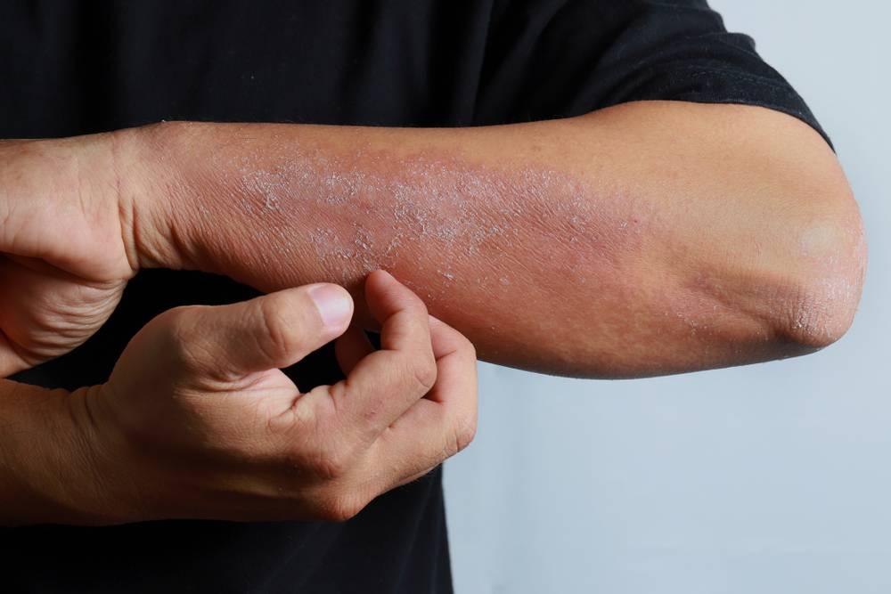 Аллергический дерматит — фото с описанием симптомом, лечение и причины