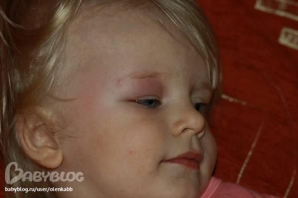 Отёк от укуса комара у ребёнка: что делать, чем снять воспаление