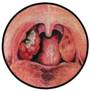 Язвенно-пленчатая ангина