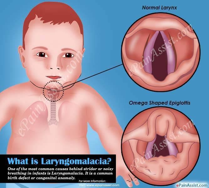 Симптомы и лечение стридора у новорожденных