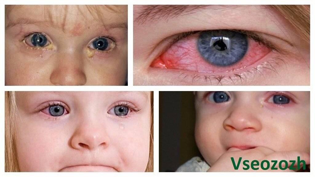 Крайне неприятное заболевание глаз — аллергический конъюнктивит у детей