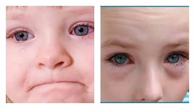 Почему красные глаза у ребенка: 5 основных причин