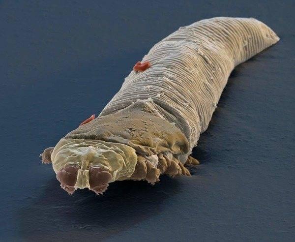 паразиты в коже